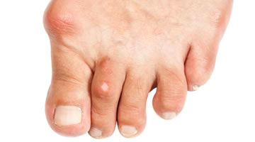 Sore bunion on the foot