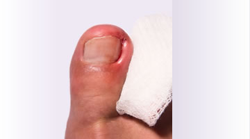 In-growing toenail treatment